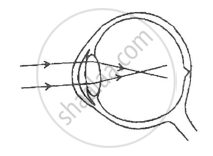 Solution given below is a diagram depicting a defect of the human i name the defect shown in the diagram ii what are the two possible that cause this defect iii name the type of lens used to correct this defect ccuart Images
